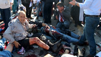 TURKEY-EXPLOSION/ An injured man asks for help after an explosion during a peace march in Ankara