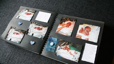 Albumet med babybilder er mye verdt for hele familien (Foto: Espen Hatlestad)
