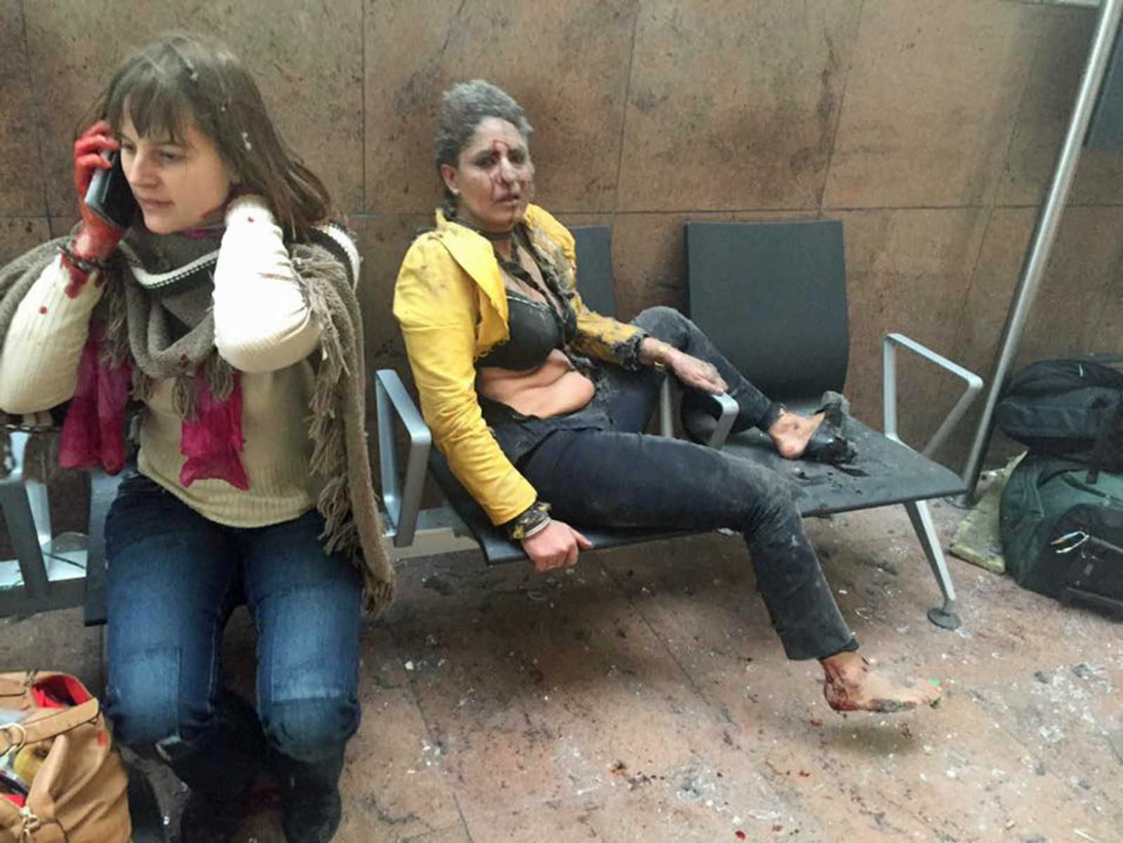 Flere er skadet etter de to eksplosjonene på flyplassen i Brussels. Brannvesenet i Brussel har opplyst til kringkasteren VRT at flere er døde etter eksplosjonene.
