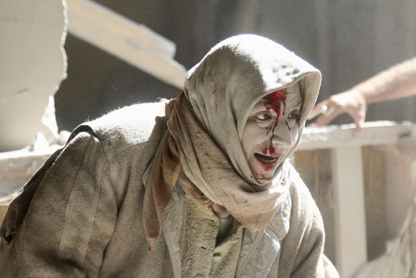 En skadd kvinne etter et luftangrep mot gamlebyen i Aleppo i Syria.