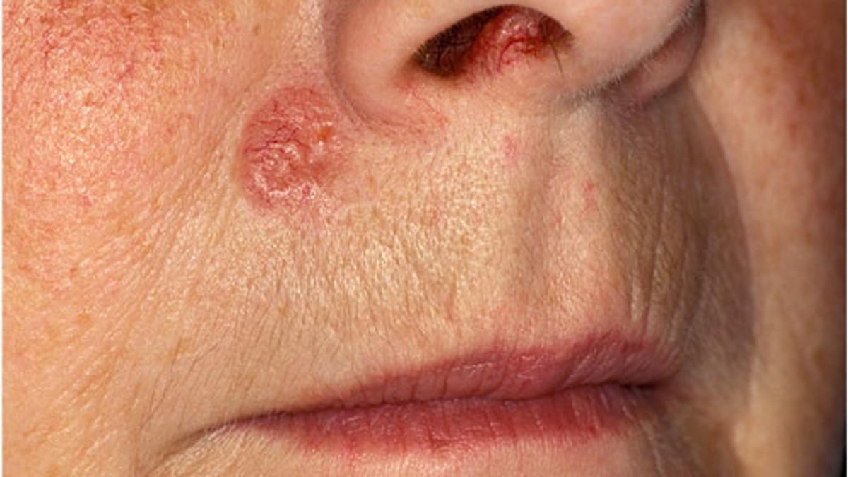 hudkreft i ansiktet bilder