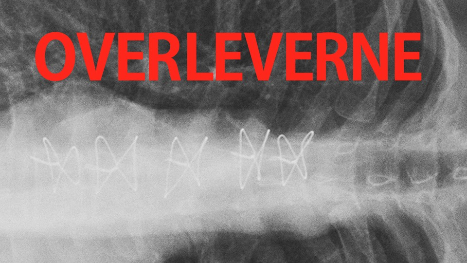 Overleverne: 1. episode