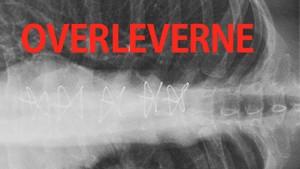 Overleverne