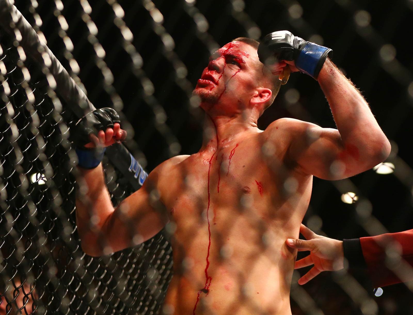 Her feirar Nate Diaz sigeren over Conor McGregor.