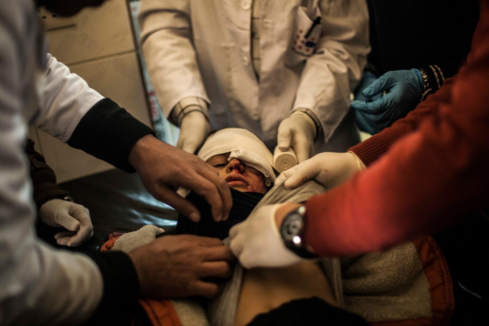 Kampene i Mosul er i sin syvende uke, og 10 år gamle Yousuf Odey er en av mange skadde.