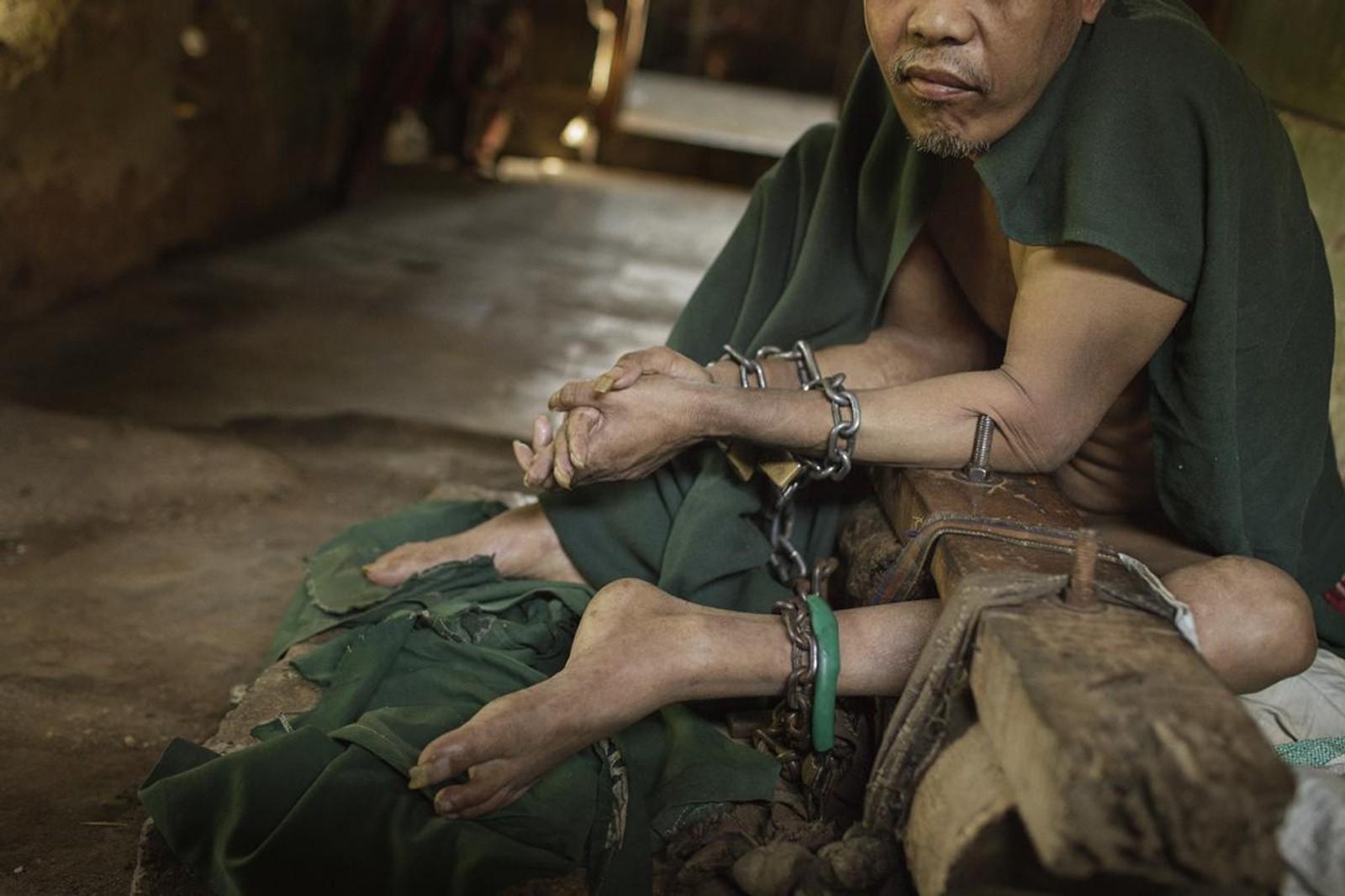 Denne mannen var lenket fast i ni år, ifølge rapporten til Human Rights Watch. Beina hans skal ha vært svært skadet da han ble sluppet fri.