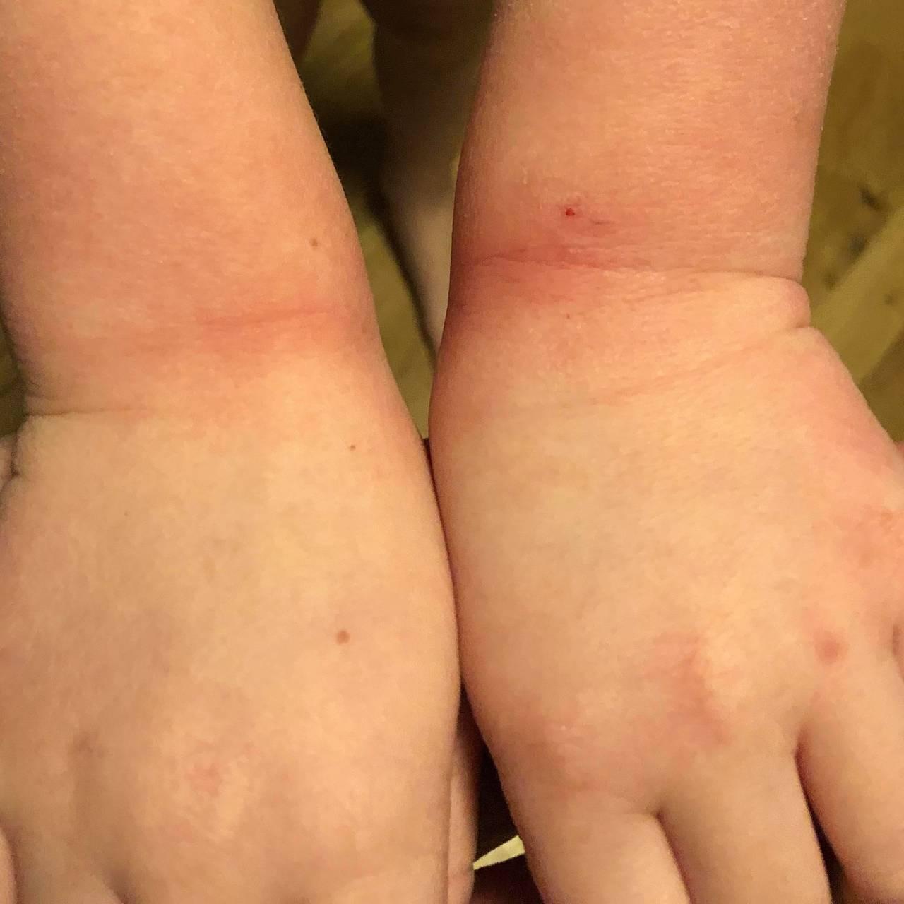 Sår på håndledd som følge av hyppig håndvask.