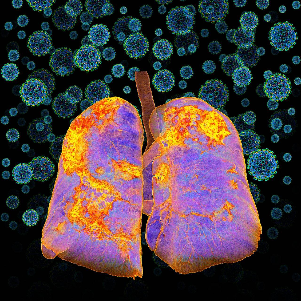 Lunger med Covid 19-infeksjon