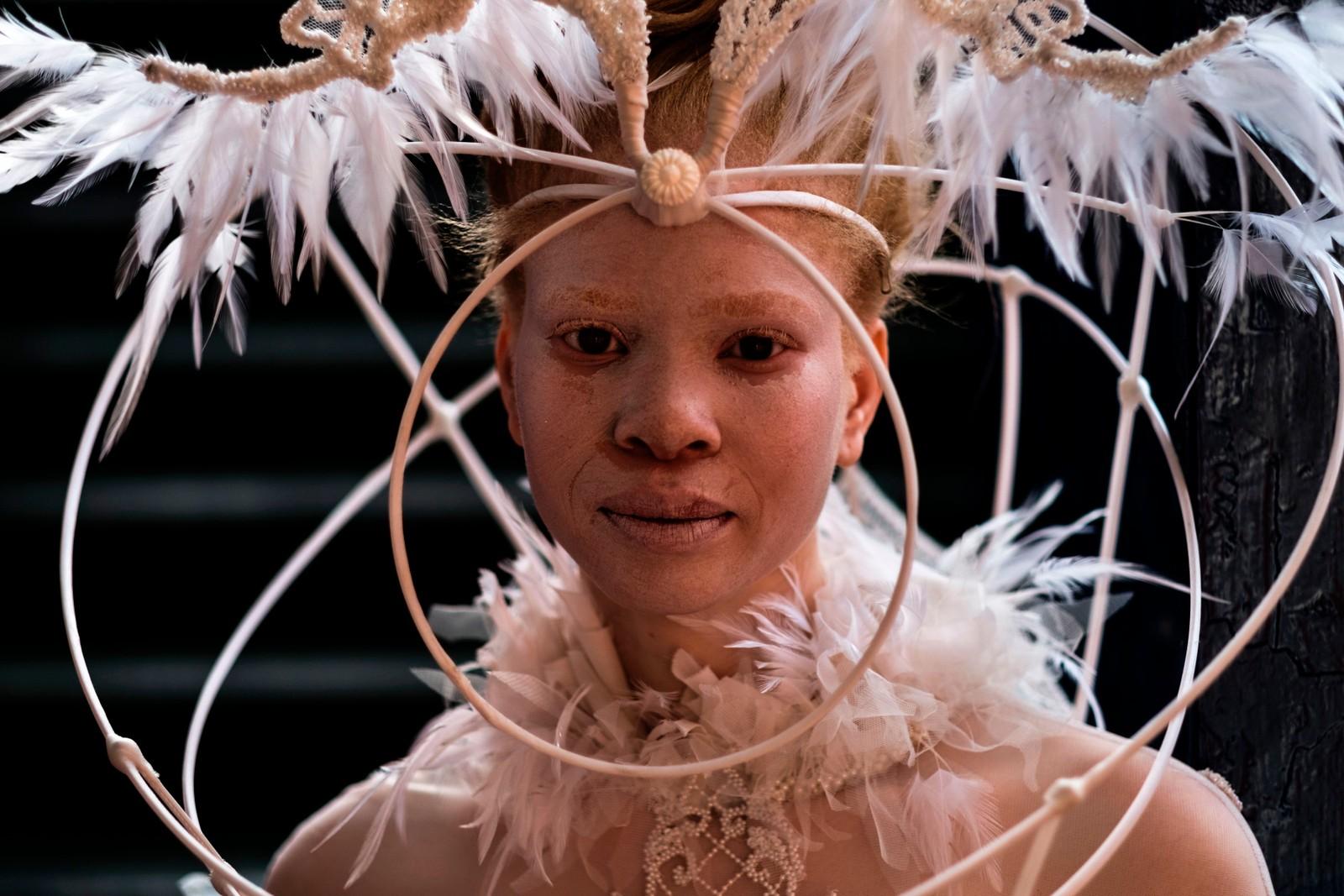 En albino-modell gjør seg klar for et moteshow i Durban.