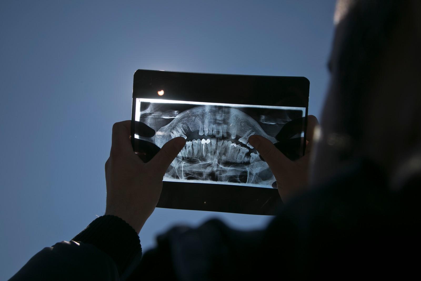 En mann bruker tannlege-røntgenpapir for å se solformørkelsen i Pristina.