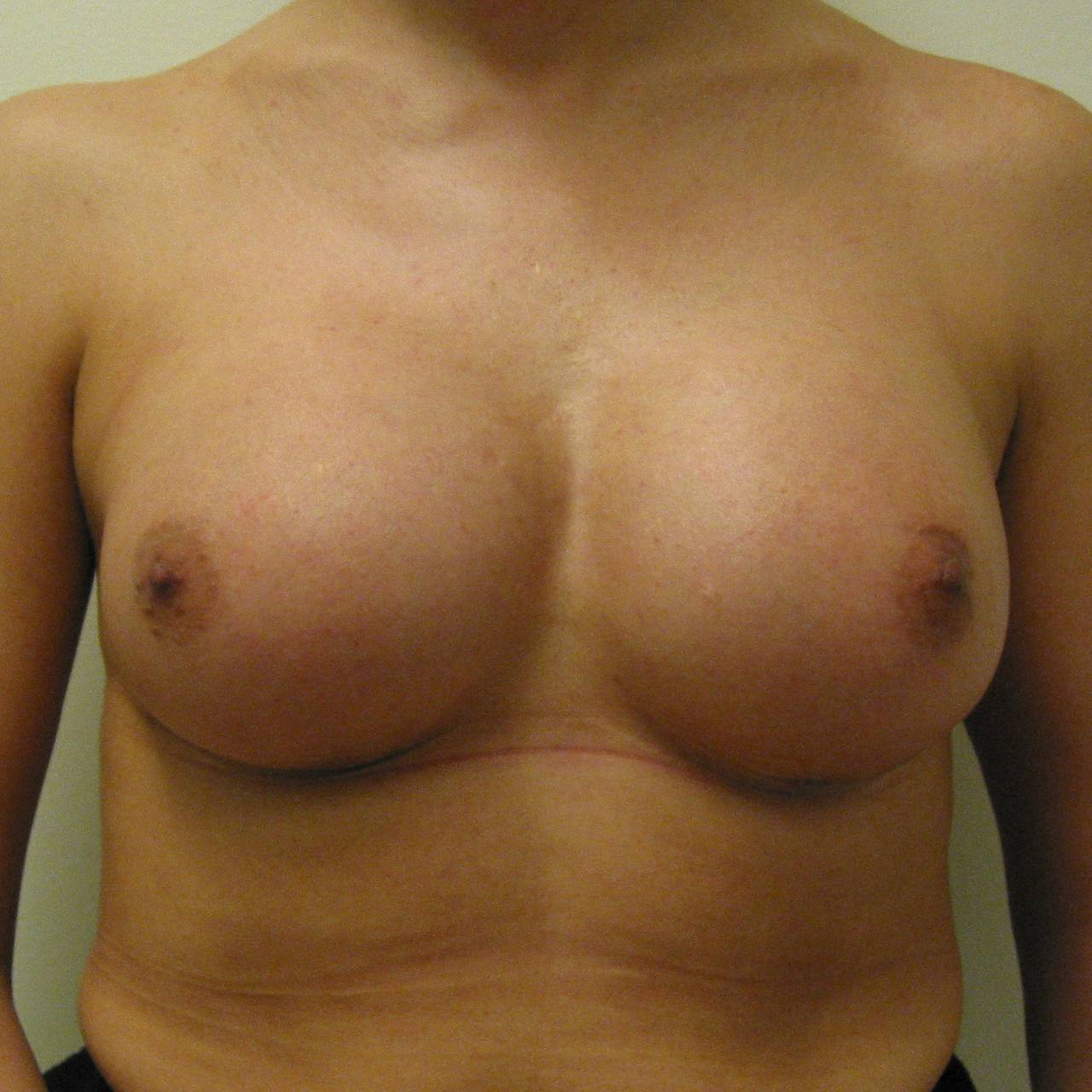 Etter brystoperasjon med innleggelse av implantat