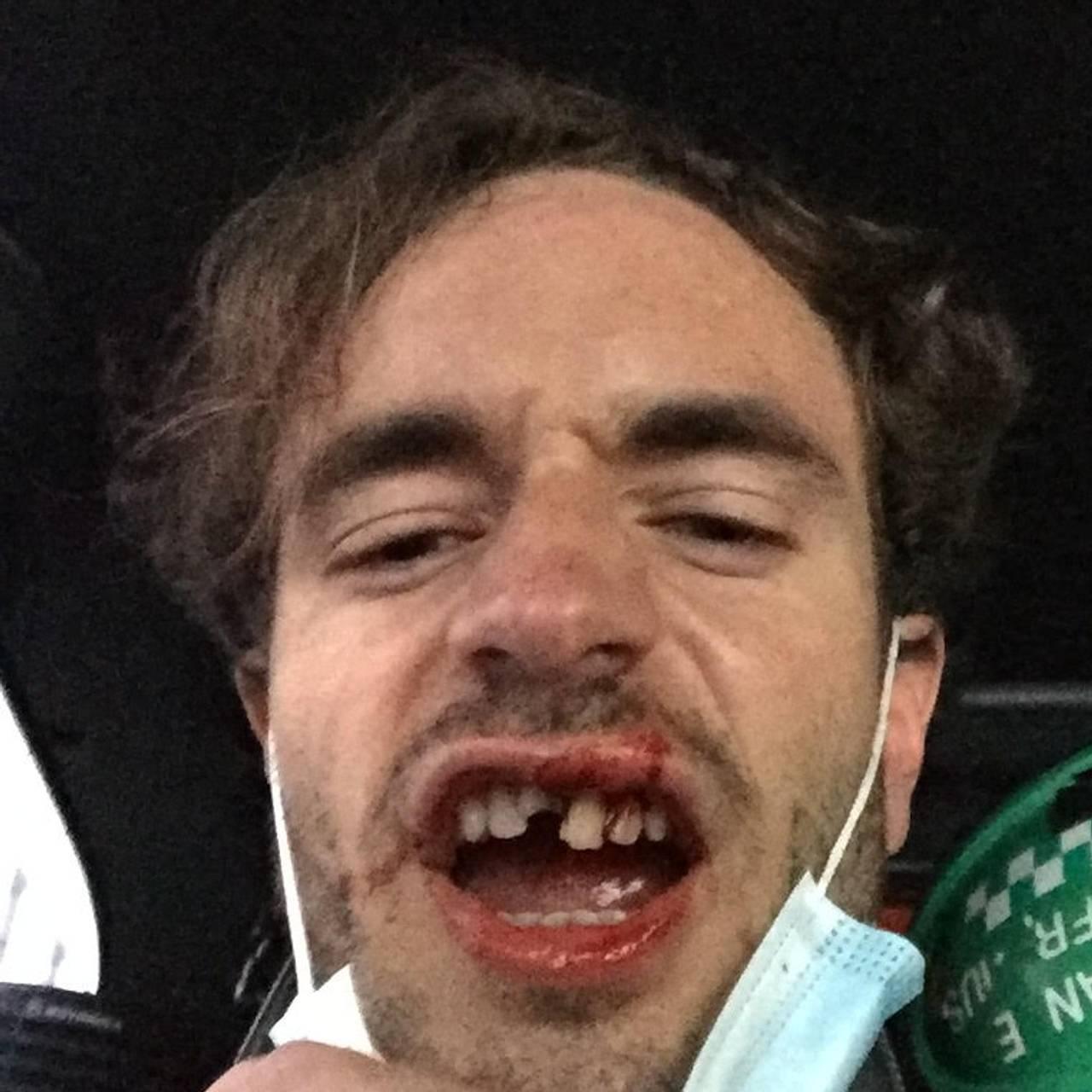 Slik så Nikolai Ravn Aarskog ut da han satt i ambulanse på vei til legevakten etter at han ble påkjørt av en elsparkesykkel.