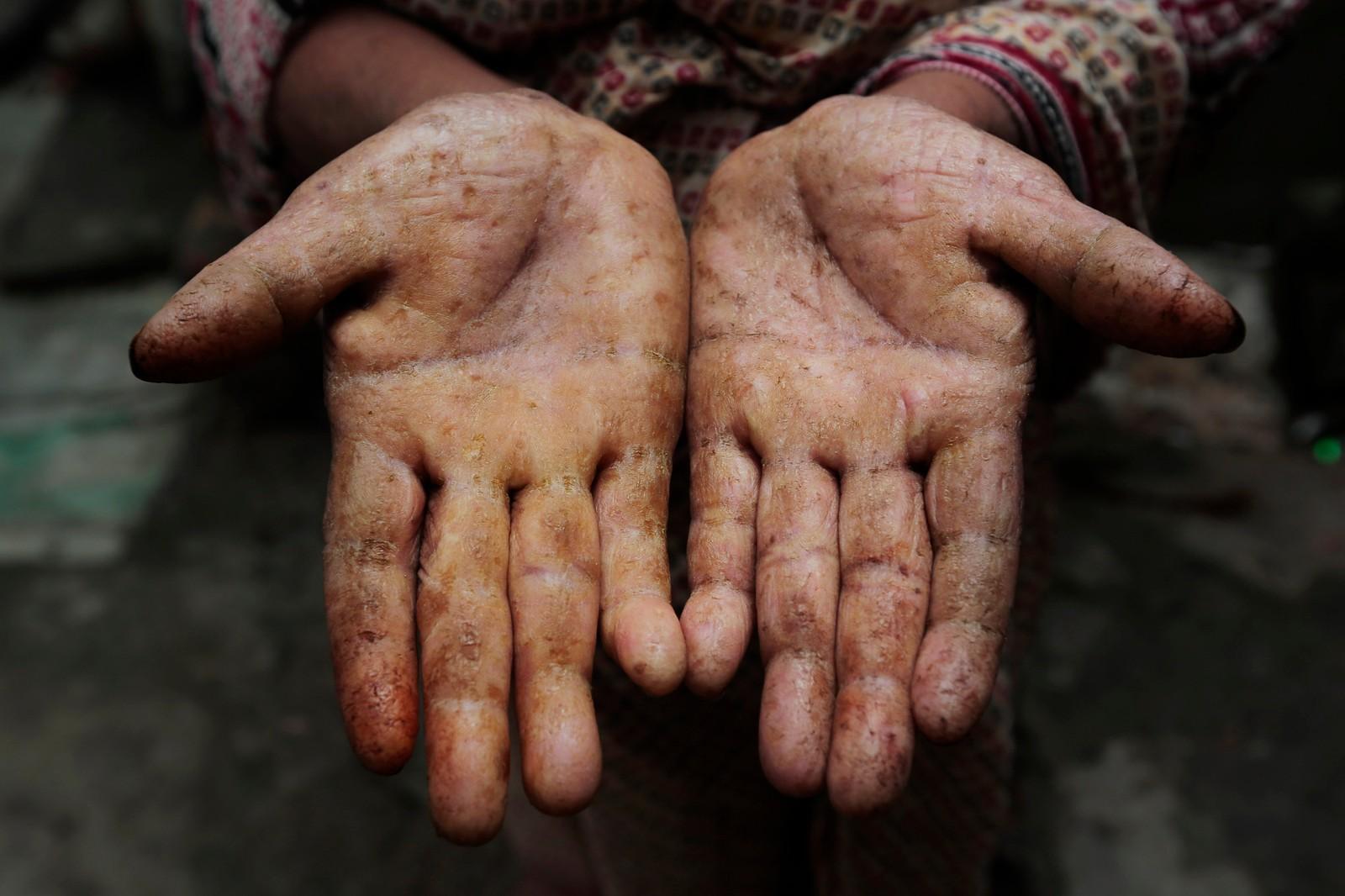 Også Rashida Begum viser fram hendene sine som er tydelig preget av arsenikkforgiftning.