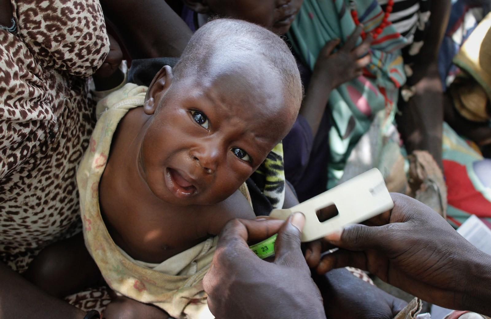 Elizabeth Athiel holder sin 8 måneder gamle datter i Aweil, Sør-Sudan