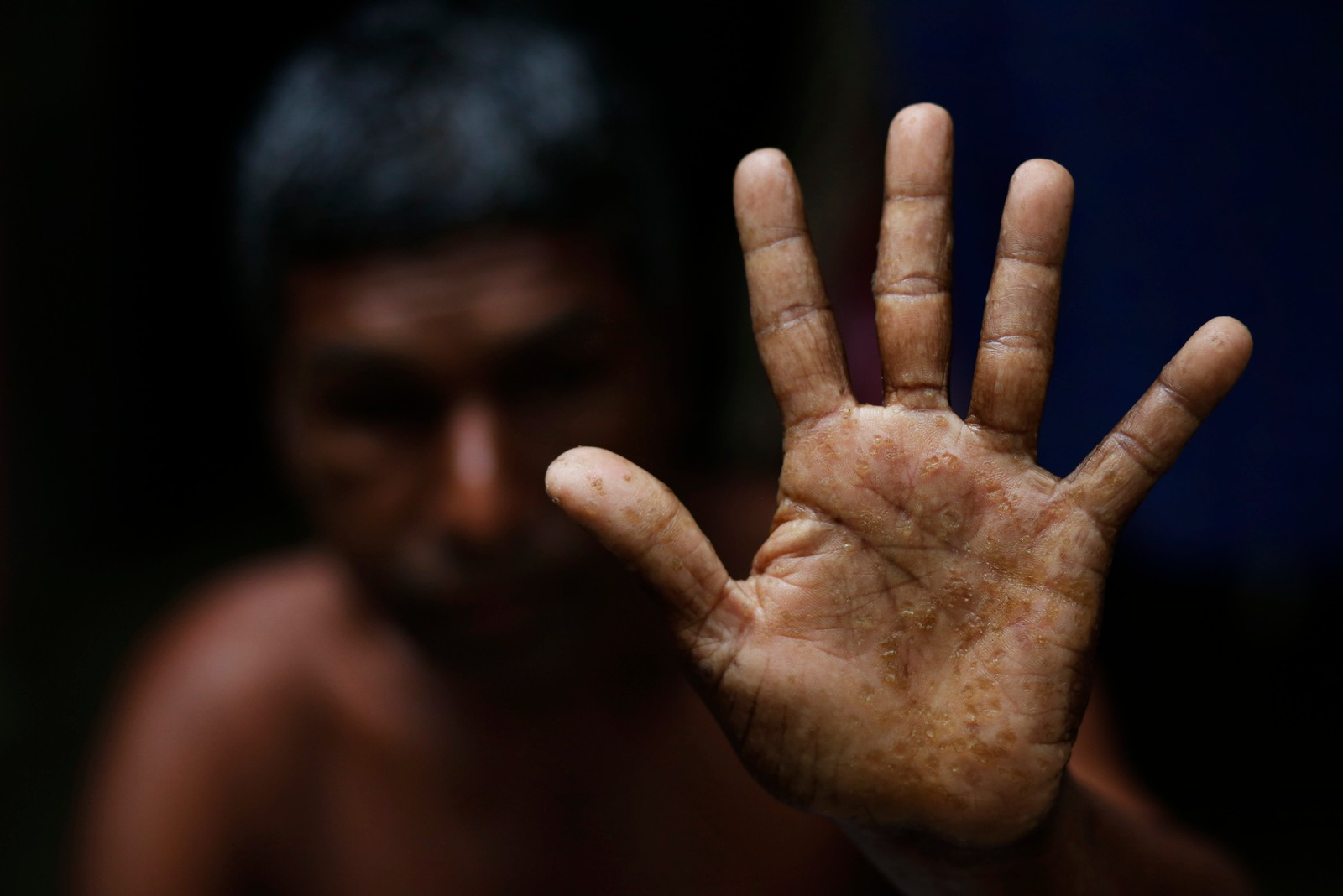 Shukkur Ali viser fram hånden sin som viser tydelig preg av arsenikkforgiftning