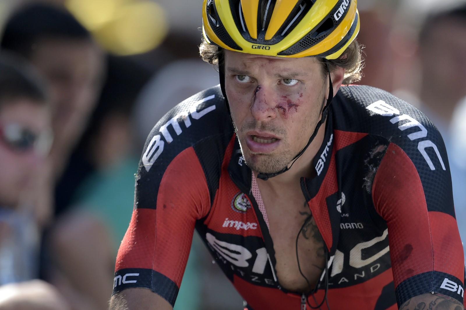 Det skal gjøre vondt å kjøre Tour de France. AFP PHOTO / LIONEL BONAVENTURE