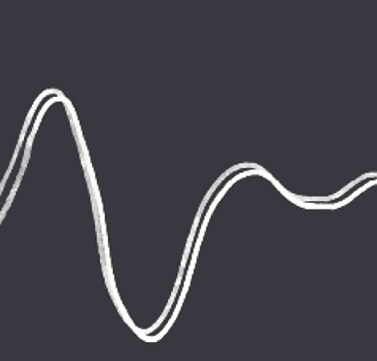 Illustrasjon av en linje som representerer at humøret går opp og ned.