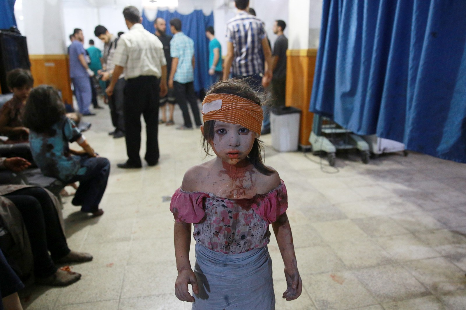 En såret syrisk jente på et sykehus i Douma, øst for hovedstaden Damascus 22. august.