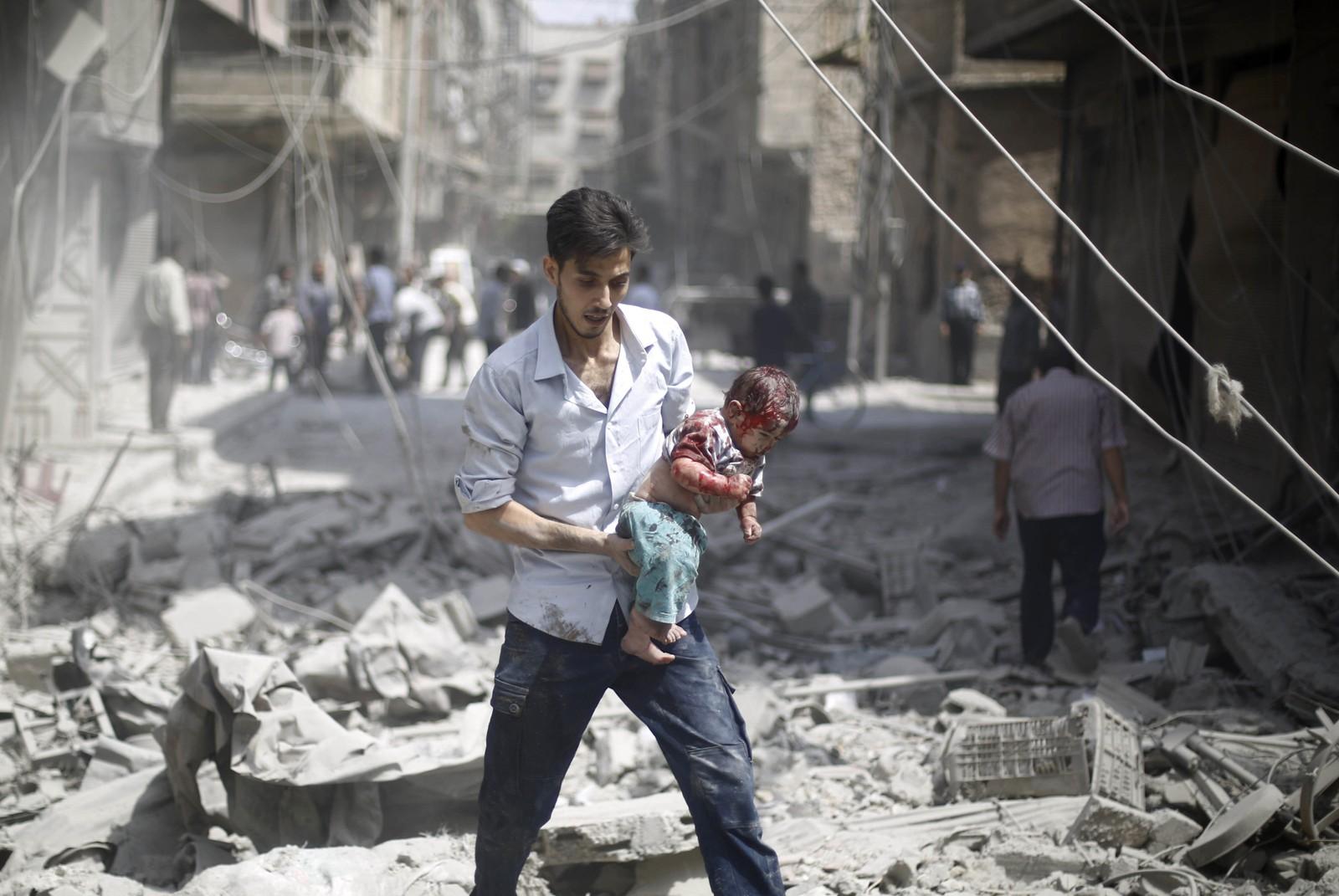 Mer enn 240.000 skal ha blitt drept siden 2011 i Syria. En far bærer her det skadde barnet sitt etter et bombeangrep på byen Douma for noen dager siden.