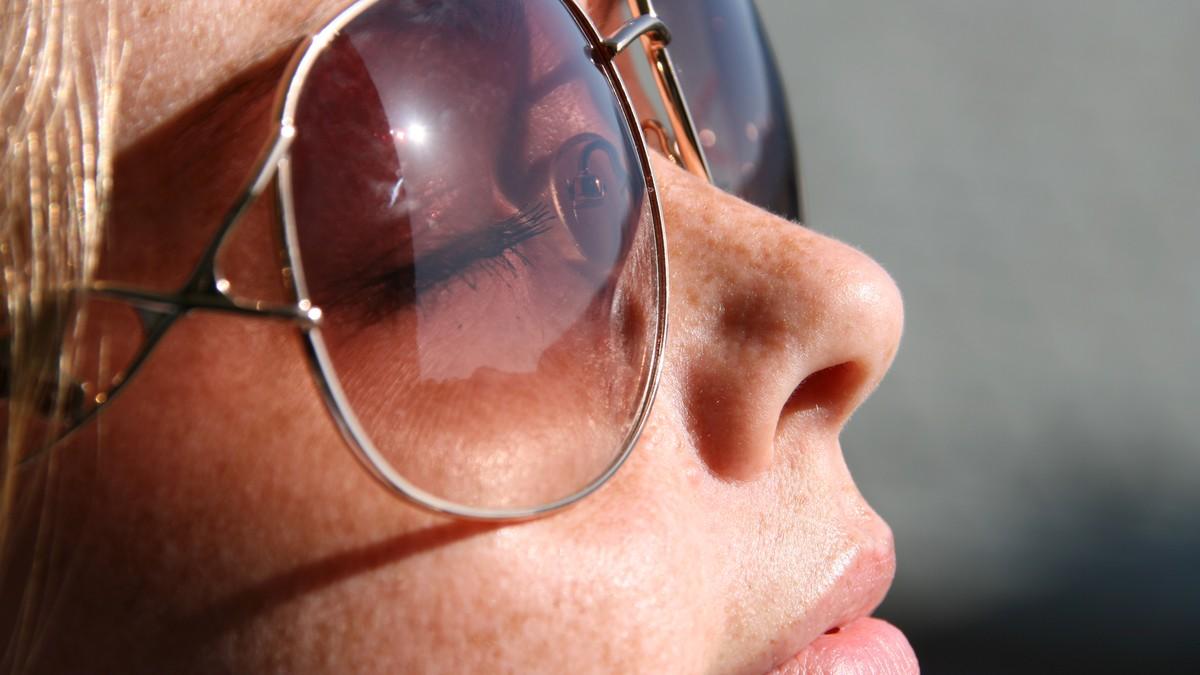 Illustrasjonsbilde solbriller - Foto: Aina Rødal/NRK