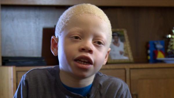 Norsk serie om barn som har en ekstra utfordring å leve med.Munashe er ni år og vil gå til skolen alene, men mamma synes trafikken i Oslo er skummel. Munashe må finne frem på trikk og t-bane for å komme til skolen. Det er ikke lett for en som har albinisme og er veldig svaksynt.