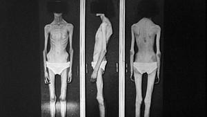 Spisevegring - en sjelden, men farlig sykdom