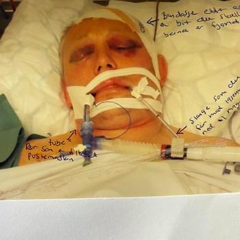 Leif Arvid Ernstsen ligger hardt skadd på sykehuset.