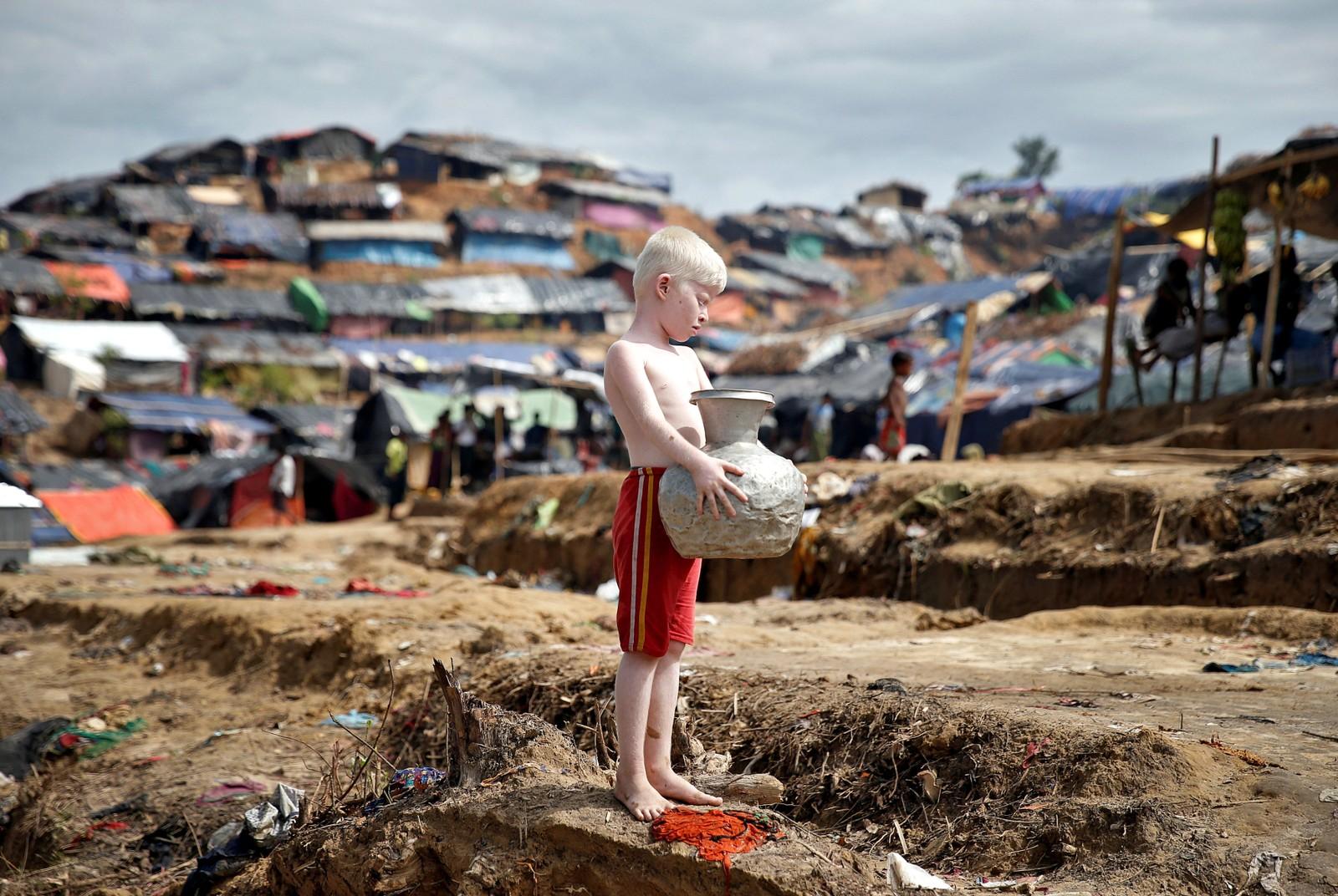 En ung Rohingya-flyktning i Cox's Bazar, Bangladesh.