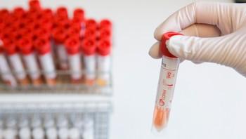Mikrobiologisk laboratorium ved Ullevål Sykehus i Oslo får inn prøver og tester etter virus A (H1N1)