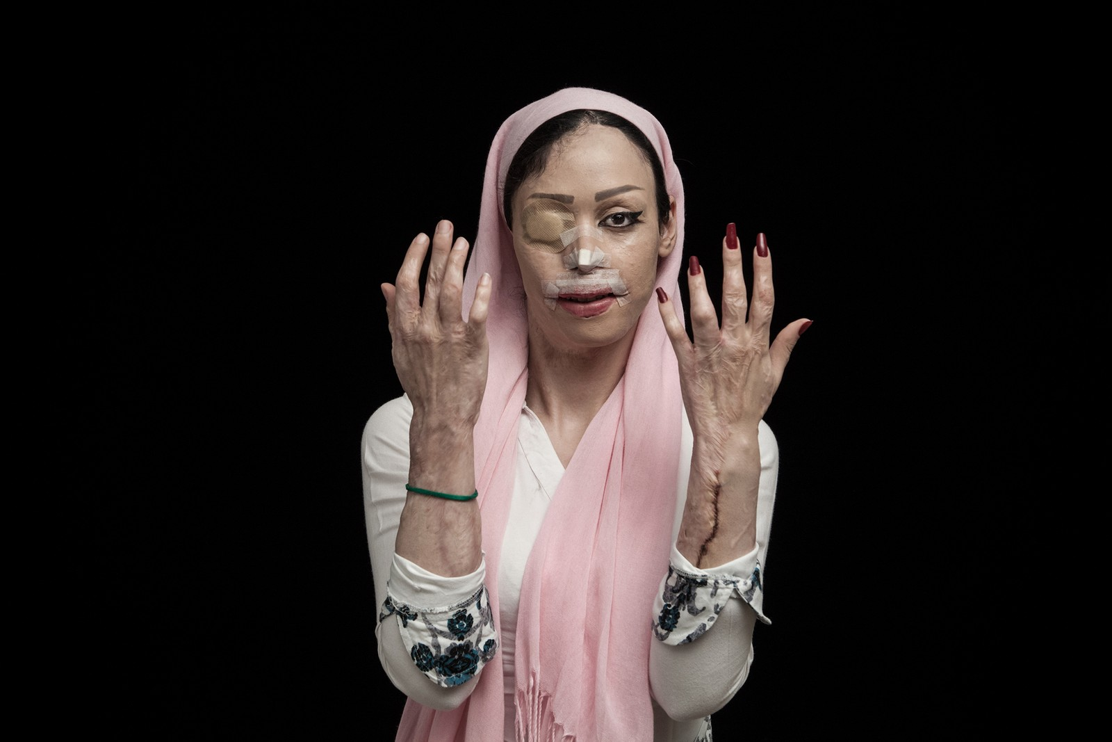 Iranske Asghar Khamseh vant Sony World Photography Awards 2016 for sin portrettserie av ofre for syreangrep.
