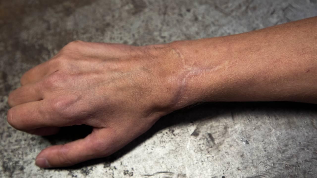 Hånden til Andreas Stenmark Berger
