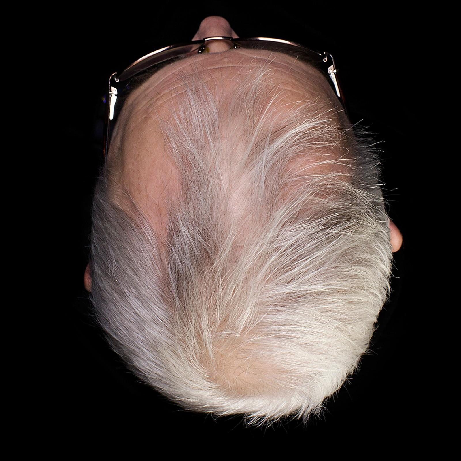 1. pris åpen klasse: Mennesker har til alle tider og over hele verden formet og klipt hodehår i forskjellige frisyrer. Håret er den delen av kroppen som er lettest å forme og som betyr mye for utseende hos mange. Frisyren har derfor blitt brukt til å uttrykke både personlighet og sosiale roller, og hatt stor betydning i kulturhistorien. Androgen alopeci er det hårtapet man normalt ser hos svært mange menn. Dette er karakterisert ved økende viker i tinningene og utvikling av måne i bakhodet. Juryens begrunnelse: Vi har lett etter personlige fotografiske stemmer, og denne skiller seg ut. Fotografen har gjort et modig og konseptuelt grep, og serien fremstår som godt løst.