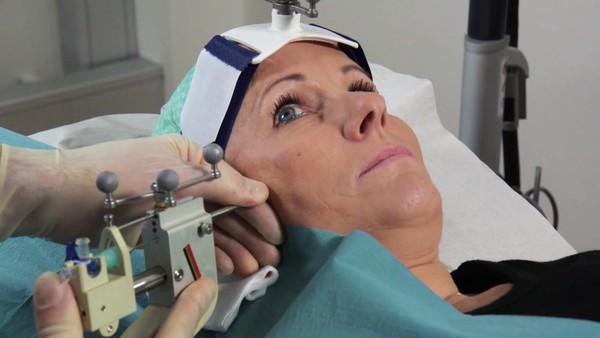 Botox gir håp for migrenerammede