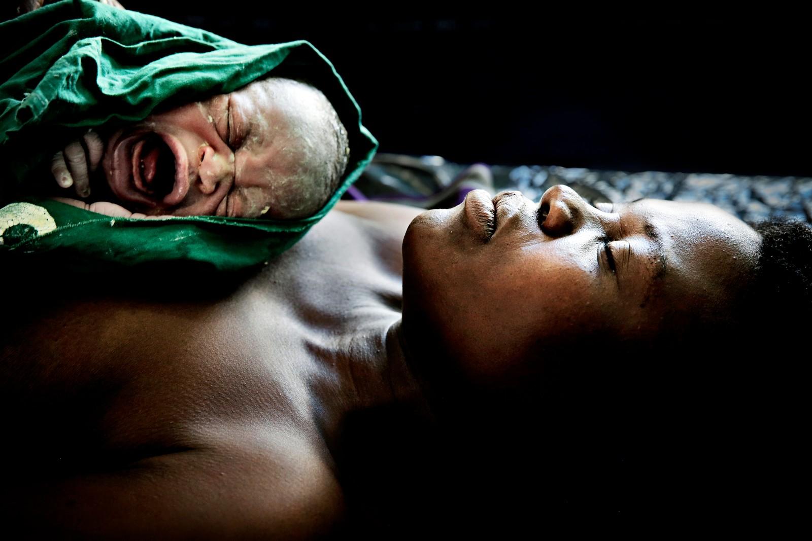 Norge har satt arbeidet for å nå FNs tusenårsmål nummer 5 om å hindre at kvinner dør når de gir liv. Blant de 8 tusenårsmålene er dette lengst fra å bli nådd. Siden 1990 er svangerskapsrelatert dødelighet halvvert, ikke redusert med 3/4 som var målet for FNs medlemsland.  Dette bildet er tatt i den timen Estery Gabriel ble fembarnsmor. Det nye livet skriker inntil mors bryst. Mbela helsesenter i Malawi mottar norsk bistand.
