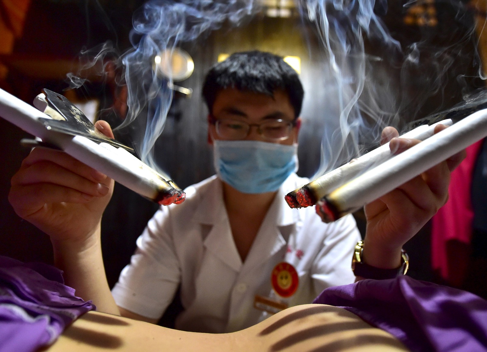 Mange kinesere tror at å brenne urter på såkalte akupunktur-punkter i huden på sommeren kan forhindre sykdom på vinterstid. Denne terapisten i Zhejiang-provinsen behandler en pasient i Yiwu.