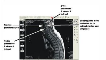 Røntgenbilde Ranveig Dohmens skader