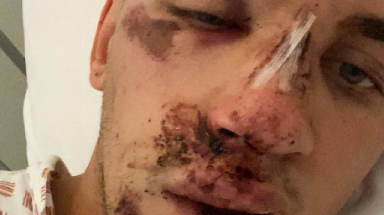Stian Werme ble skadet etter kjøring på elsparkesykkel.
