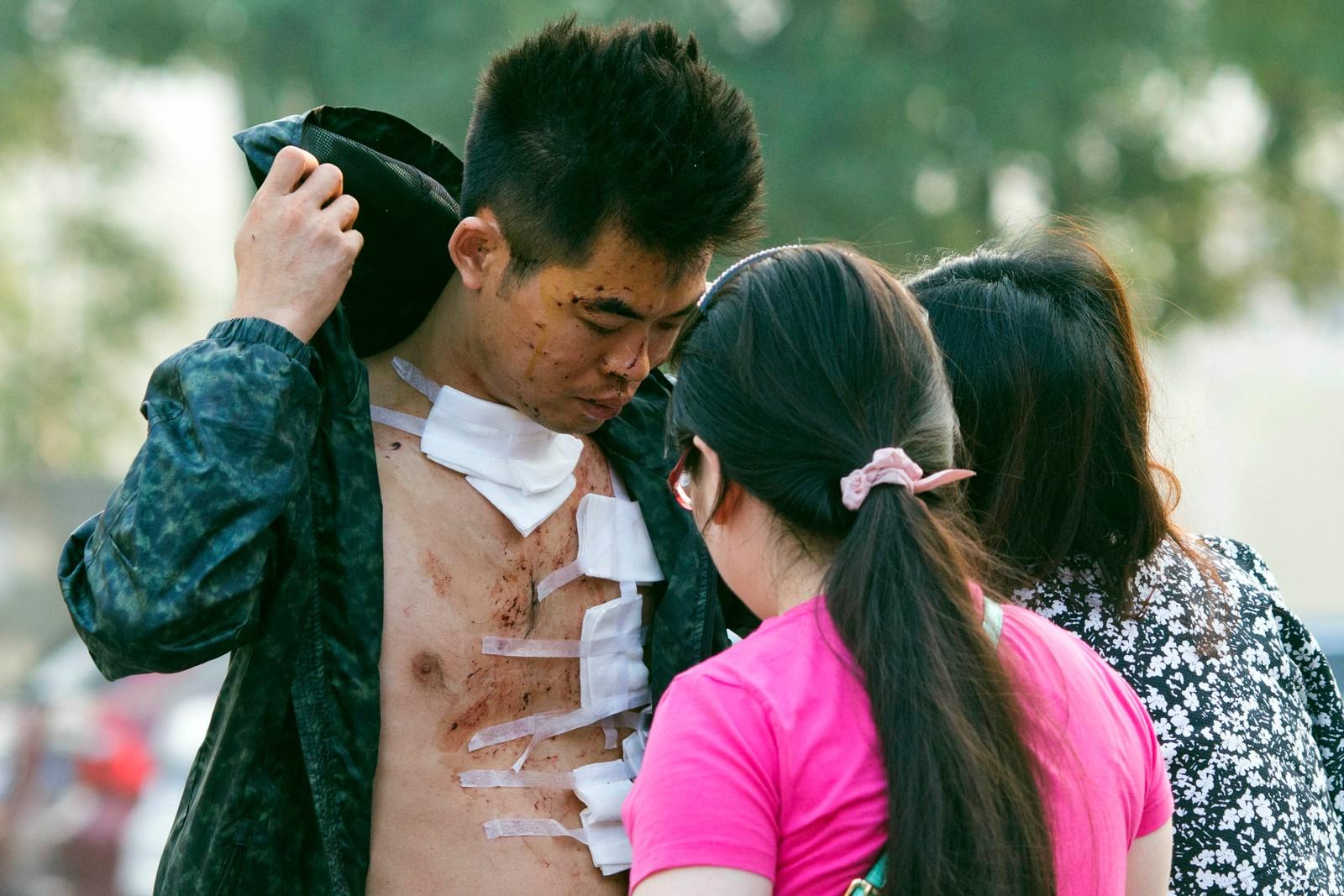 MANGE SKADDE: En mann kommer ut fra sykehuset i Tianjin torsdag morgen lokal tid.