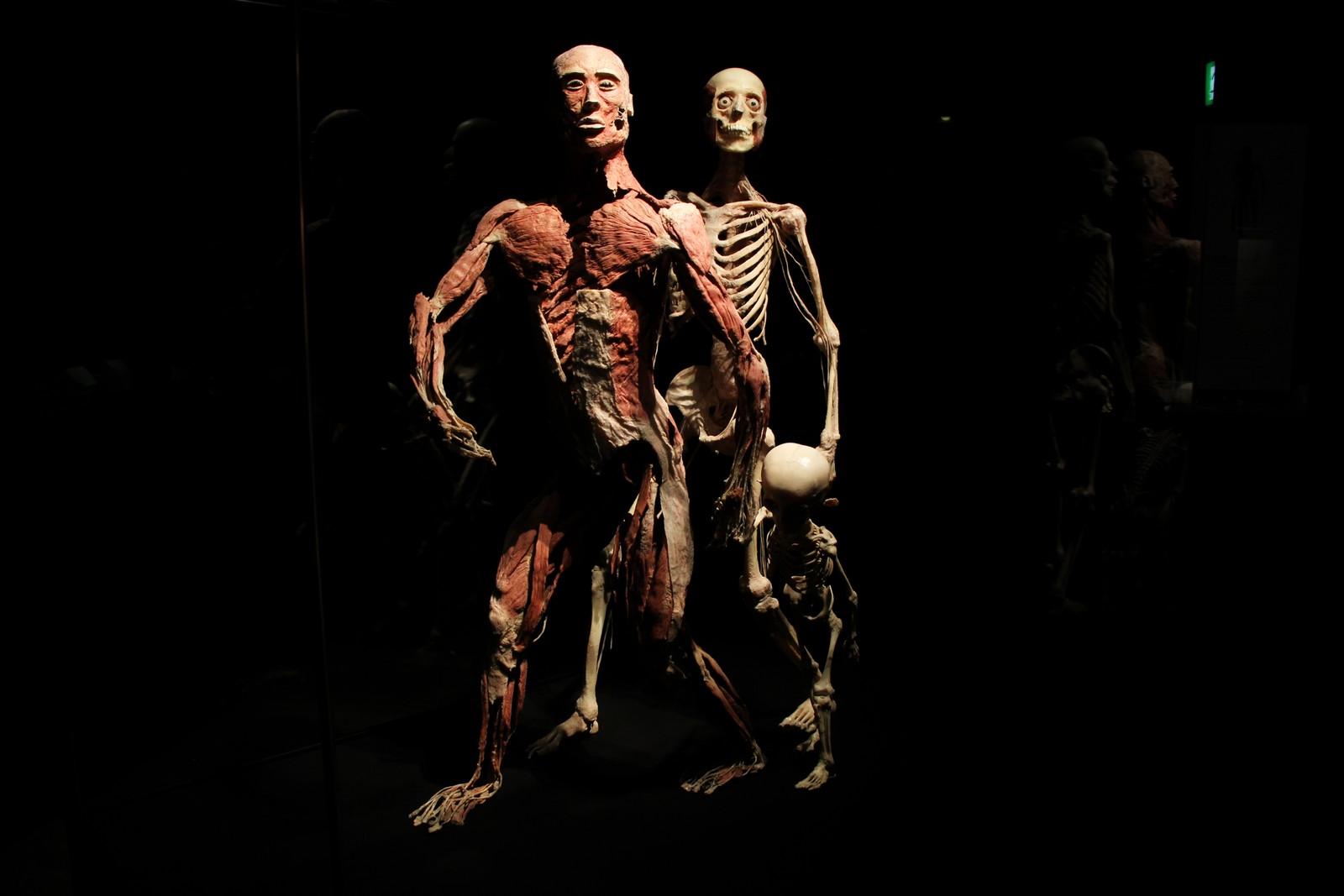 Nå arbeides det med å sette på plass alle kroppsdelene i utstillingsrommene, før den offisielle åpningen av vandreutstillingen «Body Worlds Vital». 13 hele kropper i ulike positurer skal vises frem – i tillegg til hundretalls organer. Utstillingen åpner etter pinsehelga.