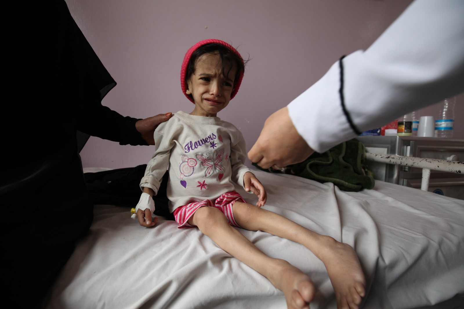 2 år og åtte måneder gamle Hanadi veier bare sju kilo. Hun er underernært og kan ikke gå, skriver Unicef. Hun er innlagt på Sabeen sykehus i Jemens hovedstad Sana. Fotografert 30. juli, 2015.