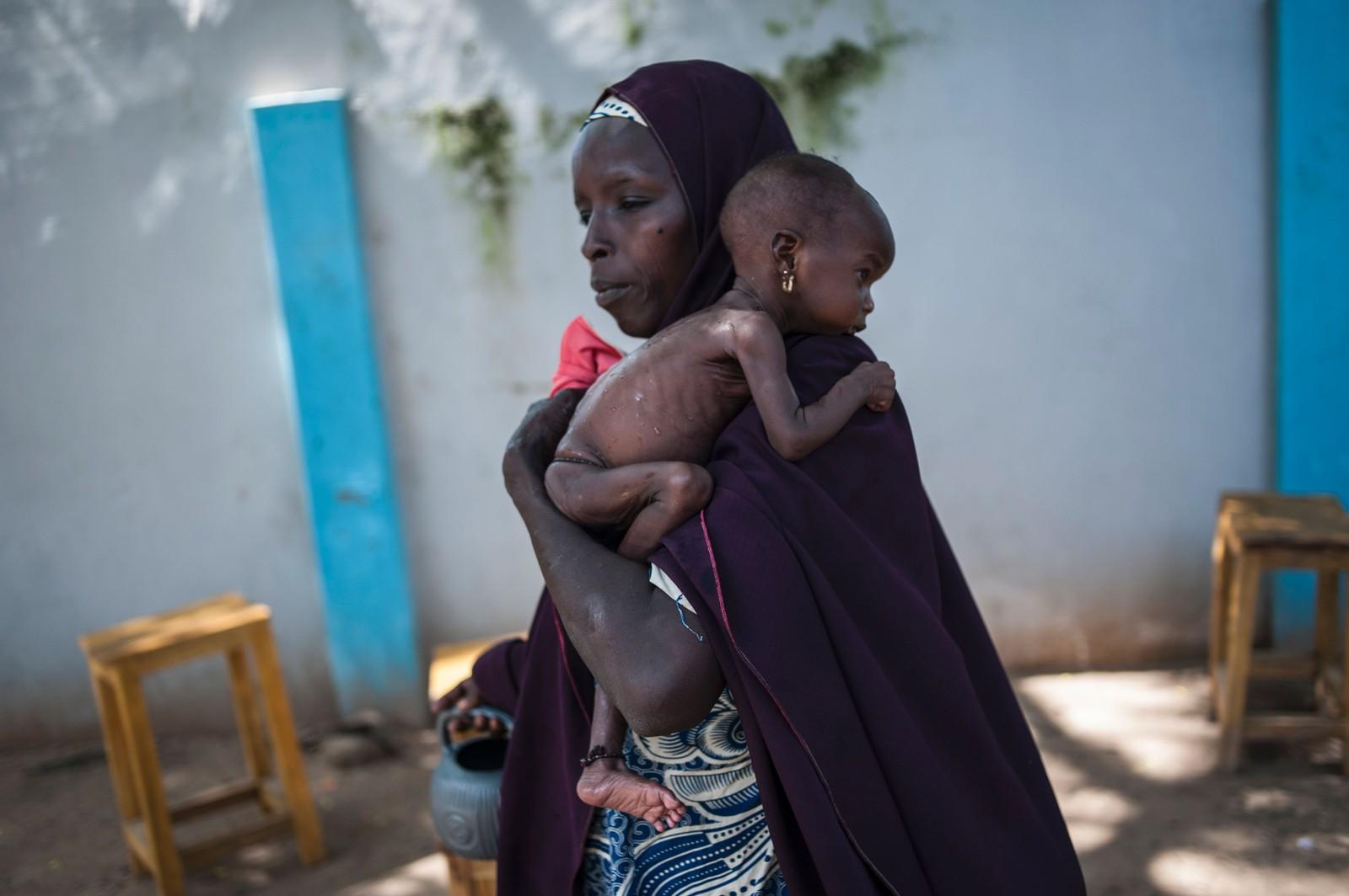 En mor holder sitt underernærte barn ved en helseklinikk i Maiduguri, nordøst i Nigeria. Hjelpeorganisasjoner advarer mot matmangel i området på grunn av langvarige konflikter. I juli meldte FN om at nesten 250.000 barn under fem år er i faresonen for underernæring og at rundt 50.000 barn kan dø.