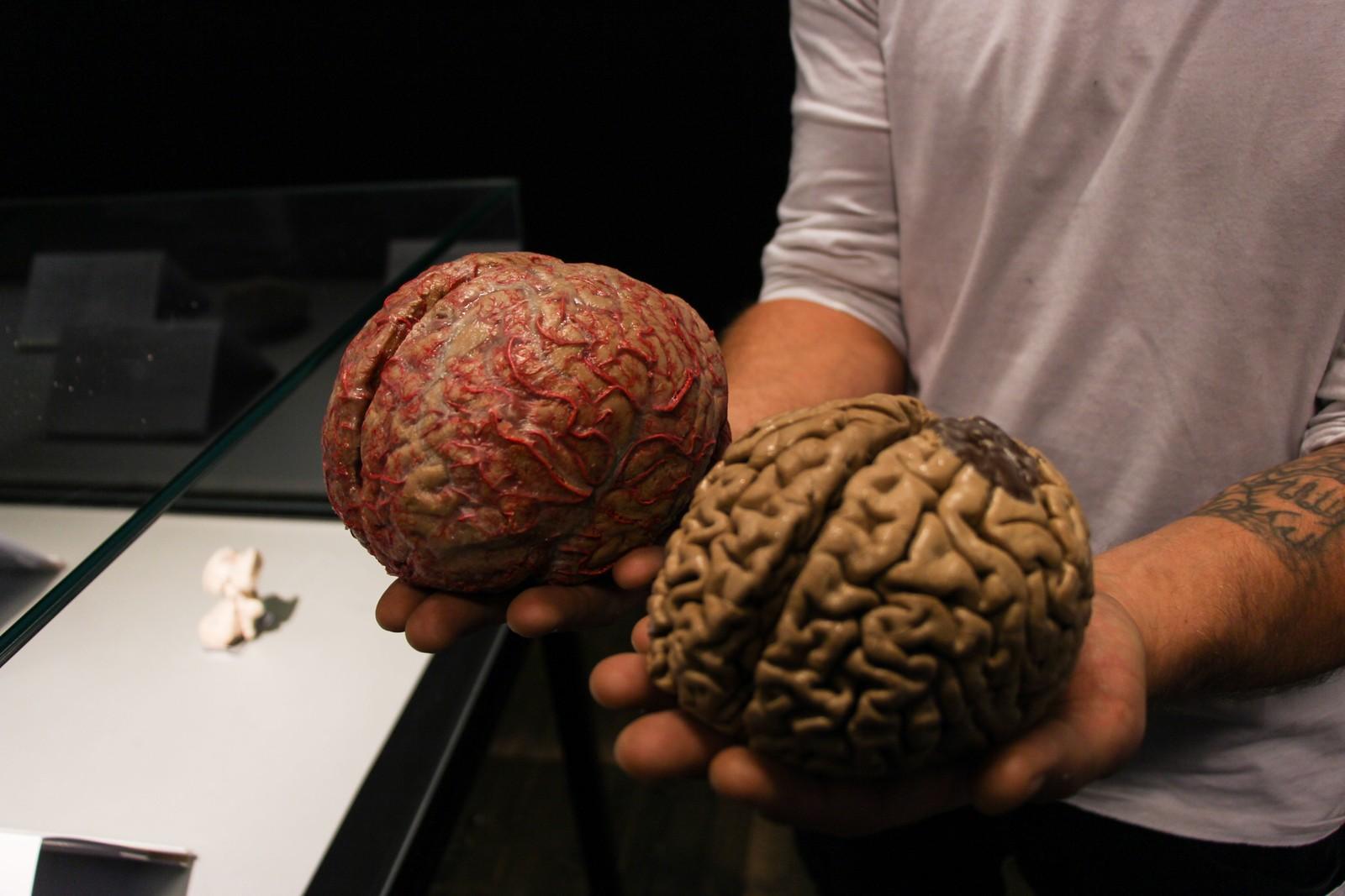 Til venstre er en frisk hjerne og til høyre er en hjerne fra menneske med alzheimer.